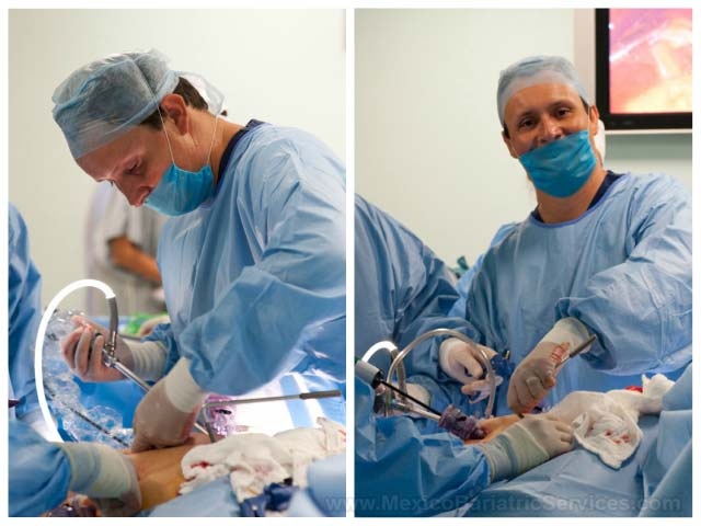 Weight Loss Surgery in Cancun - OT