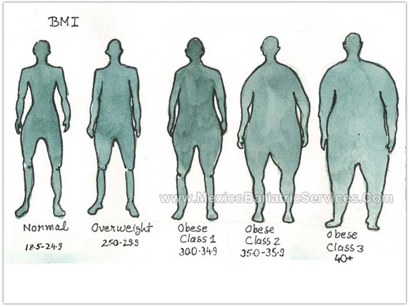 BMI Weight Loss Surgery Classification