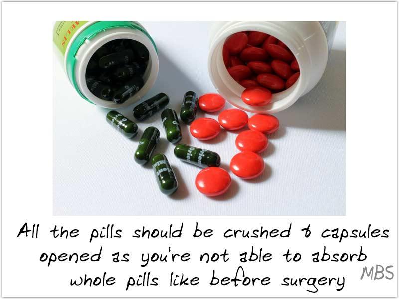 Consuming Vitamins and Minerals Post Bariatric Surgery