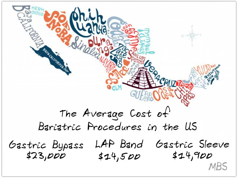 Cost of Bariatric Surgery in Mexico – Best Price