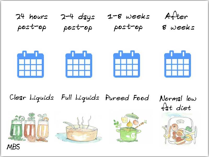 Diet After Gastric Bypass