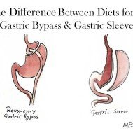 Why is pureed diet phase in gastric sleeve longer than in bypass?