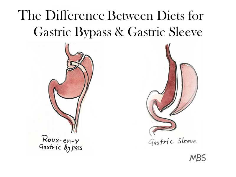 Pureed Diet Gastric Sleeve and Gastric Bypass