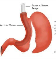 Gastric Sleeve Bougie – The What, Why, When and How