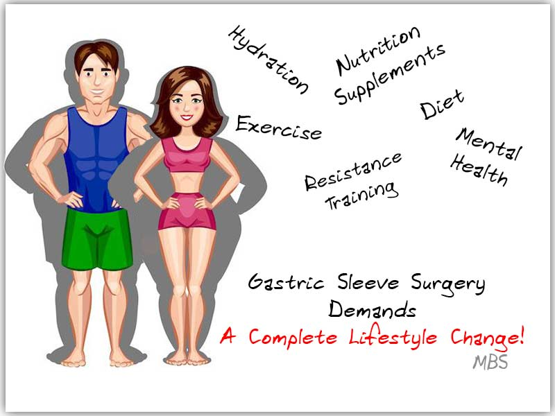 Gastric-Sleeve-Lifestyle-Changes