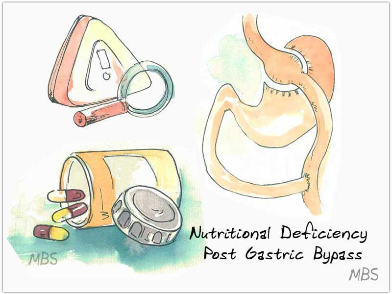 Nutritional Deficiency After Gastric Bypass