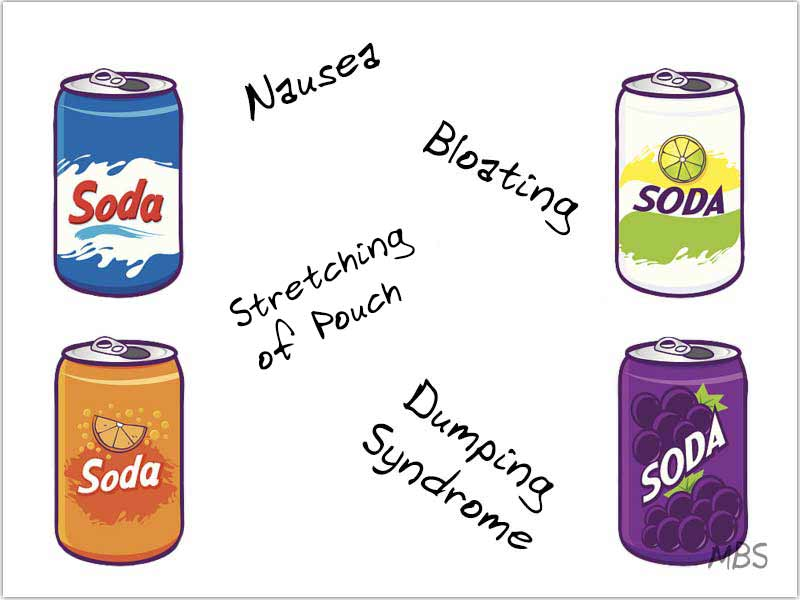 Soda after Bariatric Surgery