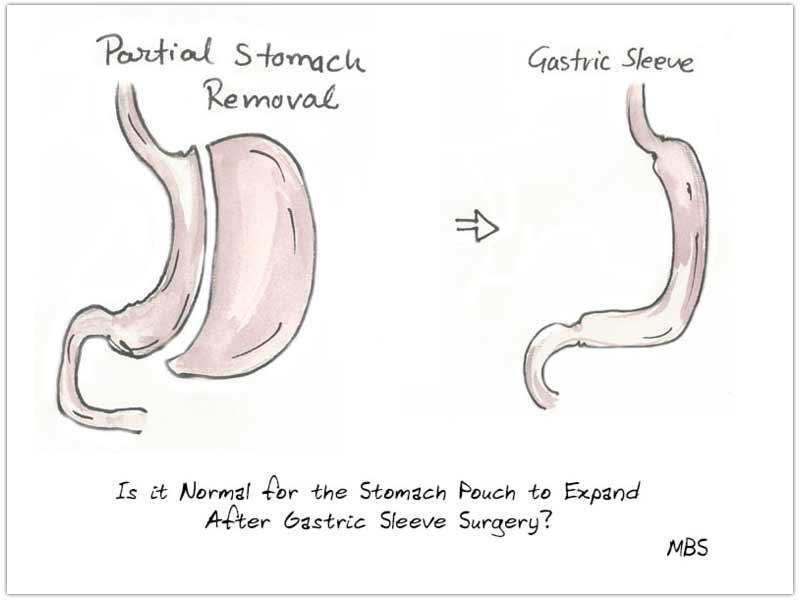 Stomach Pouch After VSG
