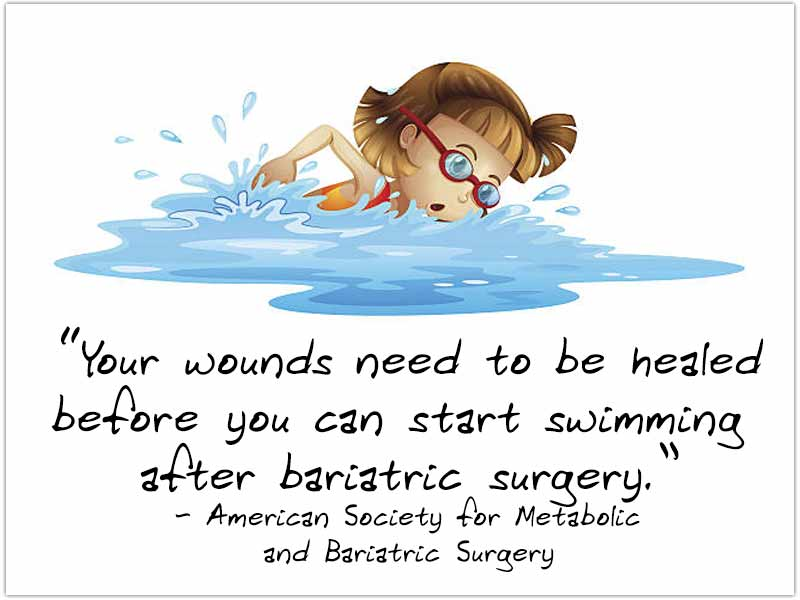 Swimming After Bariatric Surgery