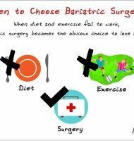 8 Important Things to Know Before You Choose Bariatric Surgery