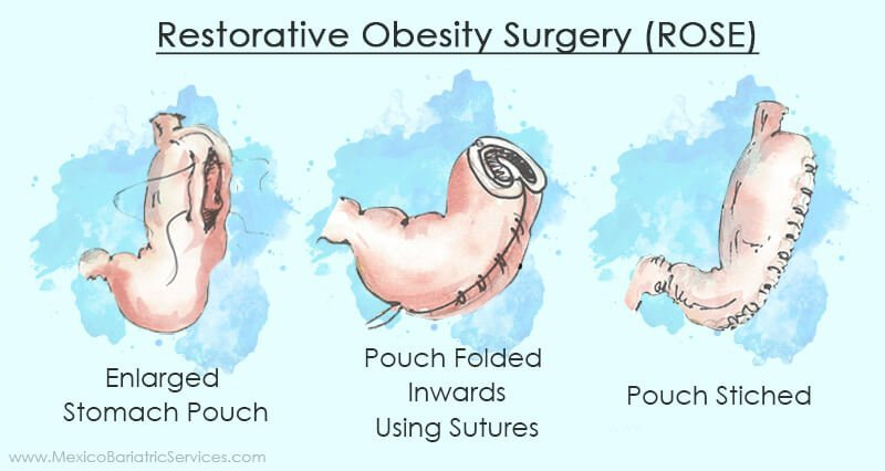 Restorative Obesity Surgery (ROSE) revision surgery