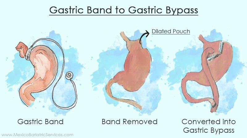 Gastric Band to Gastric Bypass