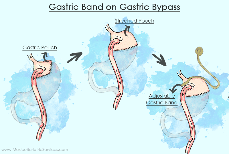 Gastric Band to Gastric Bypass revision surgery in Mexico