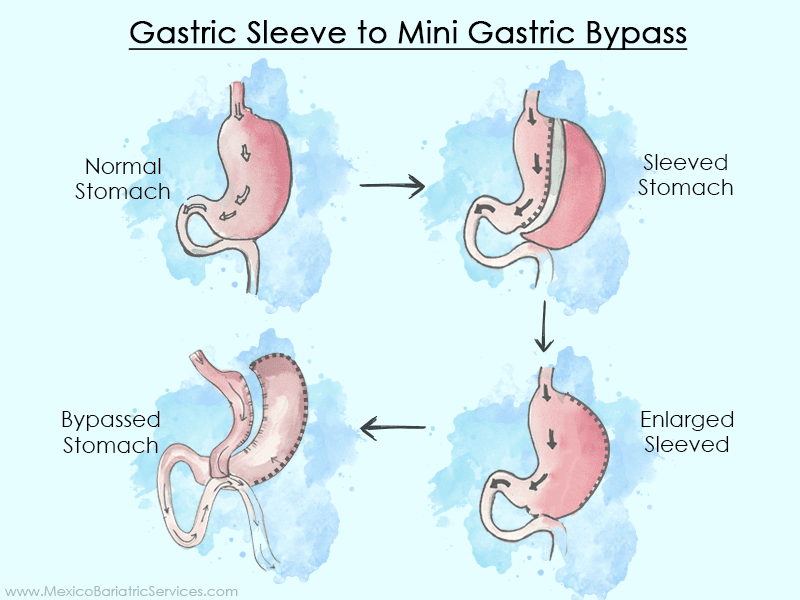 Gastric Sleeve to Mini Gastric Bypass