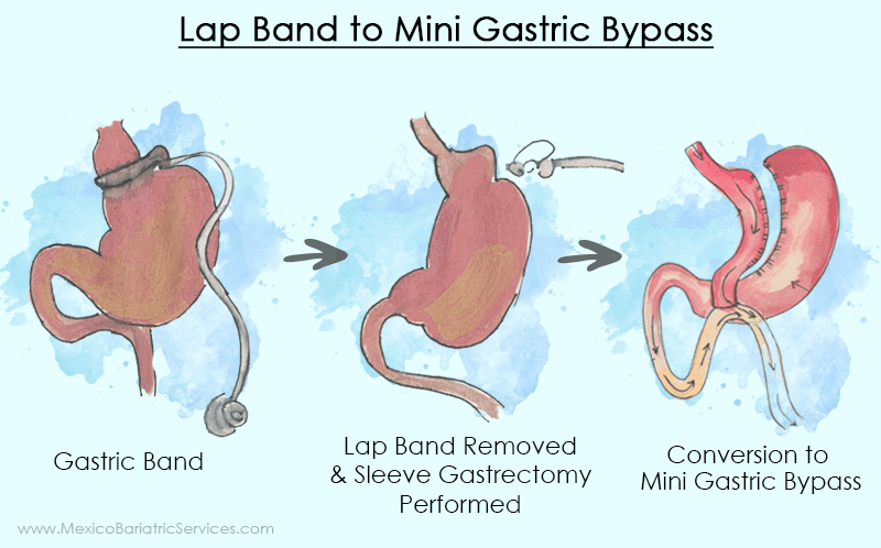 Lap band to Mini Gastric Bypass