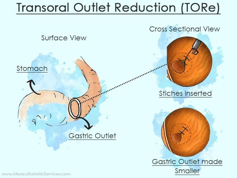 Transoral Outlet Reduction (TORe) revision surgery