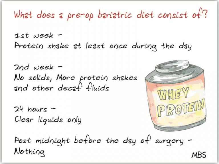 Instructions for pre op diet