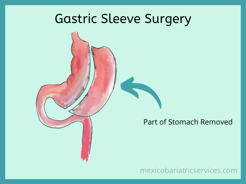 Gastric Sleeve in Mexico